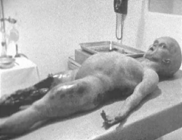 解剖フィルムのワンシーン